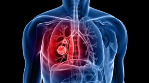 alergic-asthma---380-w-1