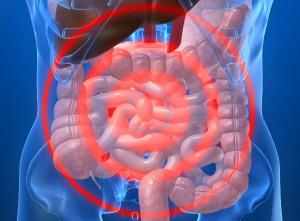 irritable-bowel-syndrome-3