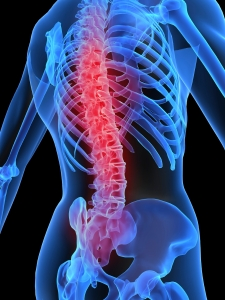 Osteoporosis123